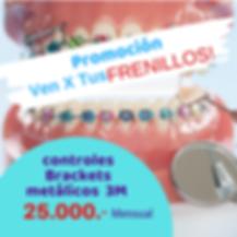 ortodoncia concepcion oferta.png