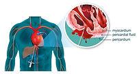 Heart visual_needle.jpg