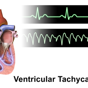 Improving Ventricular Tachycardia treatment