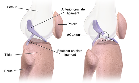 ACL_Tear.png
