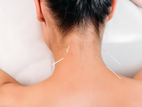 Dry Needling! Never Tried it? Your questions answered!