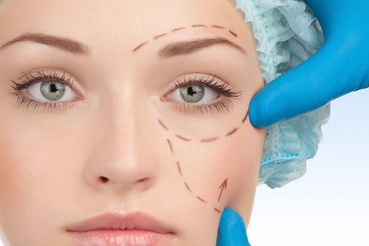medworld-clinic-Eyelid-Aesthetic-1.jpg