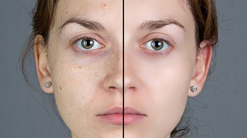 How-To-Make-Your-Skin-Smooth-Naturally.j