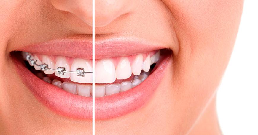 Ortodoncia tradicional/Invisible