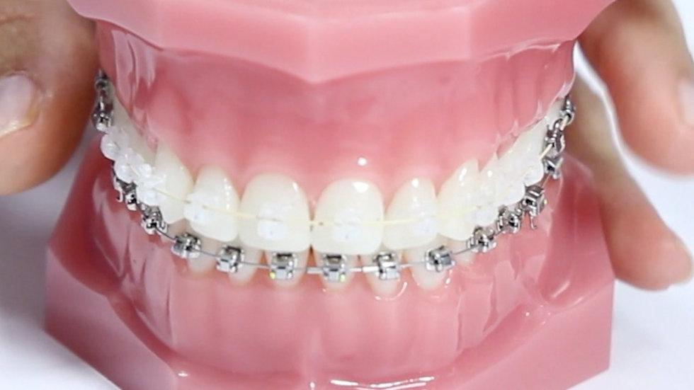 Ortodoncia para adultos - fija