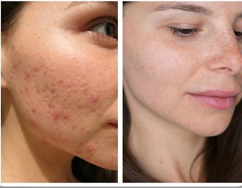 Ansiktsbehandling för acne problem