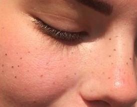 Fresh_freckles_maquillage_permanent_bordeaux