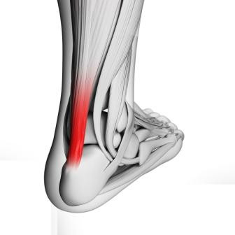 Shockwave therapy for intractable heel pain (plantar fasciitis), tendinopathy of the foot and associ