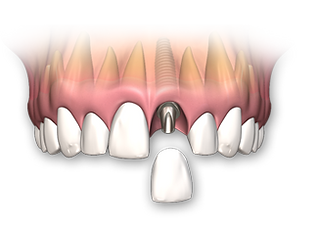 dental-implant-single-2.png
