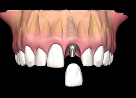 dental-implant-single-2.png
