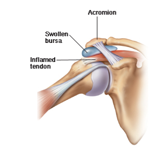 Shoulder Common Injuries - OccFit Physiotherapy