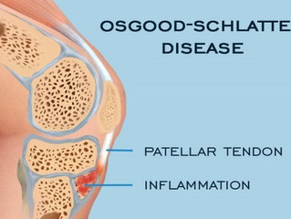 Adolescent Knee Pain - Osgood Schlatter Disease