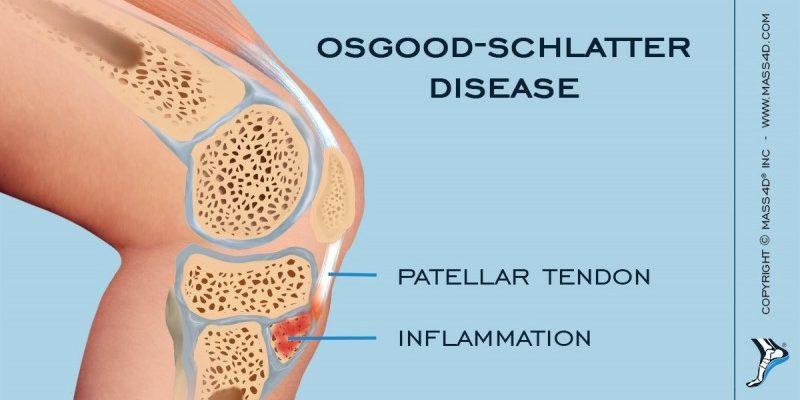 Osgood Schlatters Disease Anatomy