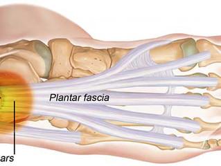 Plantarfasciitis - What the Heel?