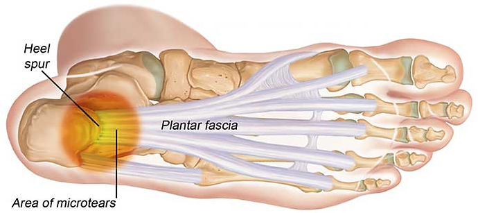 Plantarfascia - Common Injuries Foot and Ankle - OccFit Physiotherapy Emu Heights