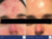 Obagi_Challenge_2019_CLENZIderm_3.jpg