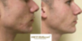 img-treatments-intracel-before-and-after