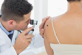mole check dermatoscope.png