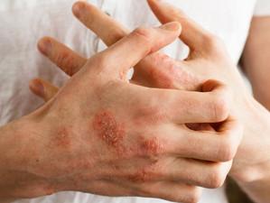 אטופיק דרמטיטיס      (אסטמה של העור) -    טיפול