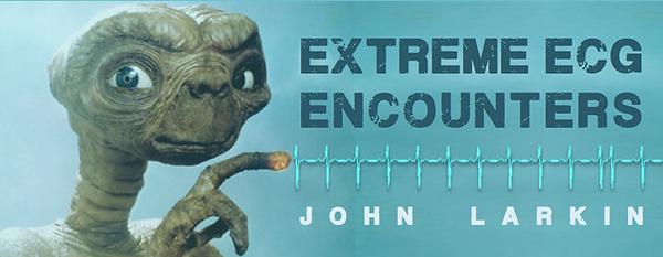 larkin_extremeecg.png
