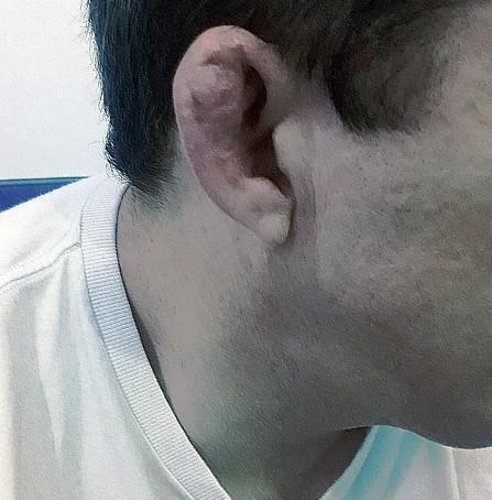 Cauliflower Ear in Jiu Jitsu