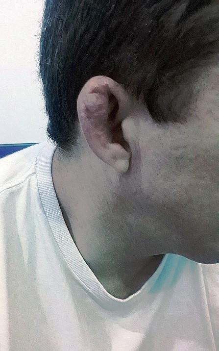 20+ years of bjj training – check, bjj black belt – check, cauliflower ear – check [Image courtesy of Anselmo Oliveira]