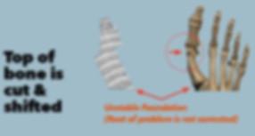 Lapiplasty-Before-2.jpg