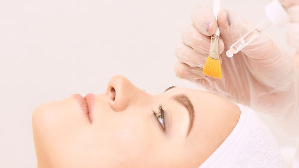 A women having a chemical peel treatment on her face