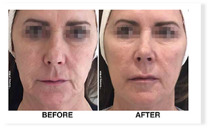 profhilo-before-after - The Medical Skin
