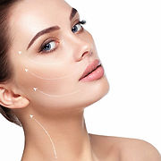 Dermal fillers to cheeks - the Medical Skin clinic Newmarket and Brentwood.jpg