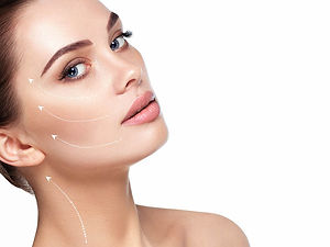 Dermal fillers to cheeks - the Medical S