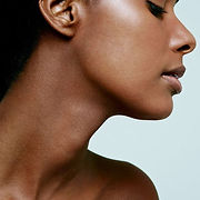 neck treatment jowls - the medical skin clinic essex newmarket.jpg