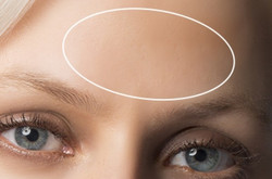 Forehead_lines - The Medical Skin clinic