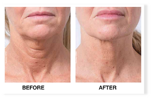 profhilo-neck - The Medical Skin Clinic.