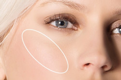 cheekbones - The Medical Skin Clinic