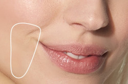 Wrinkles_around_lips - The Medical Skin