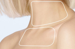 Neck_chest - The Medical SKin Clinic