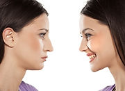 non surgical rhinopasty - The Medical SK