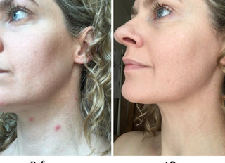 How I Got Rid ofAcne(And How You Can Too!)