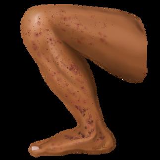 Vasculitis on Brown skin