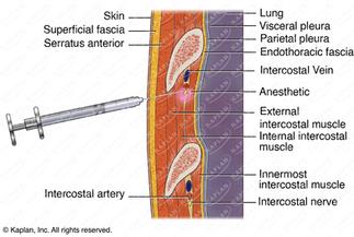 Intercostal Needle