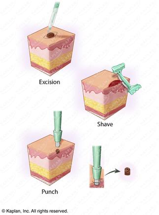 Types of Skin Biopsies