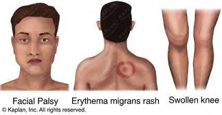 Lyme's Disease Signs & Symptoms