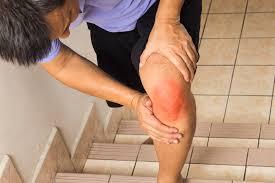 Symptoms of Rheumatoid Arthritis (RA) and Treatment
