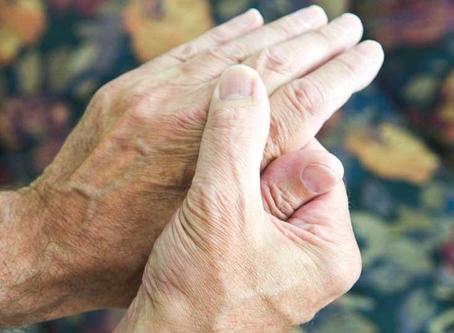 How to heal Rheumatoid Arthritis Naturally