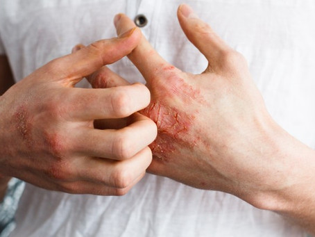 How to Get Rid of Dry Skin from Eczema with 5 Natural Supplements
