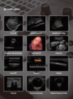 4D color doppler image