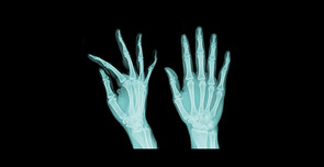 X-Ray Waste Disposal