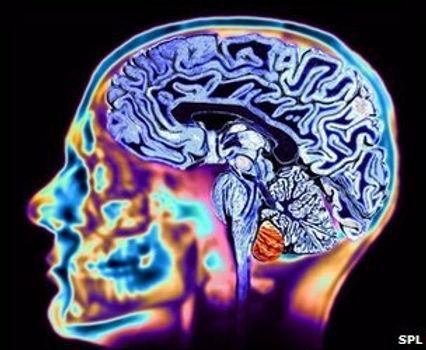 BrainMRIbySPL.jpg