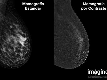 Imagine: primer centro privado en lanzar la Mamografía con Contraste en Barcelona